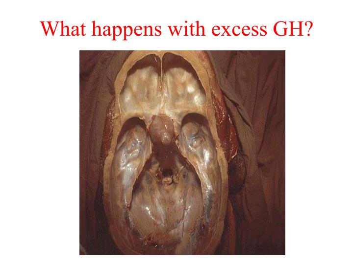 What happens with excess GH?