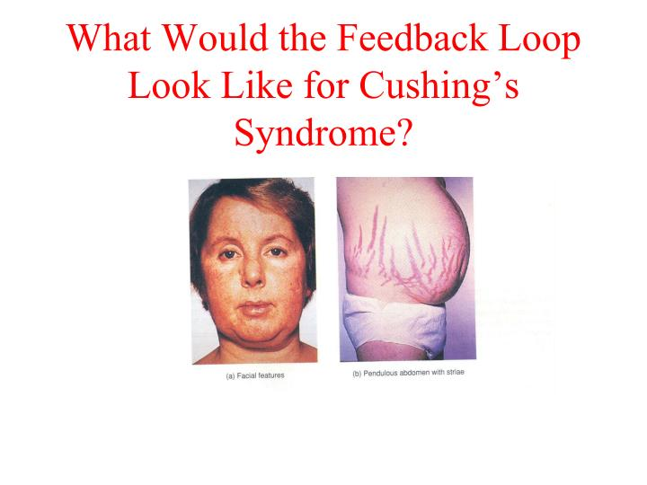 What Would the Feedback Loop Look Like for Cushing's Syndrome?