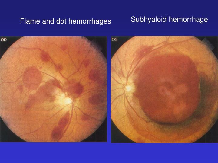 Subhyaloid hemorrhage