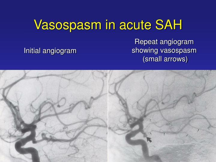 Vasospasm in acute SAH