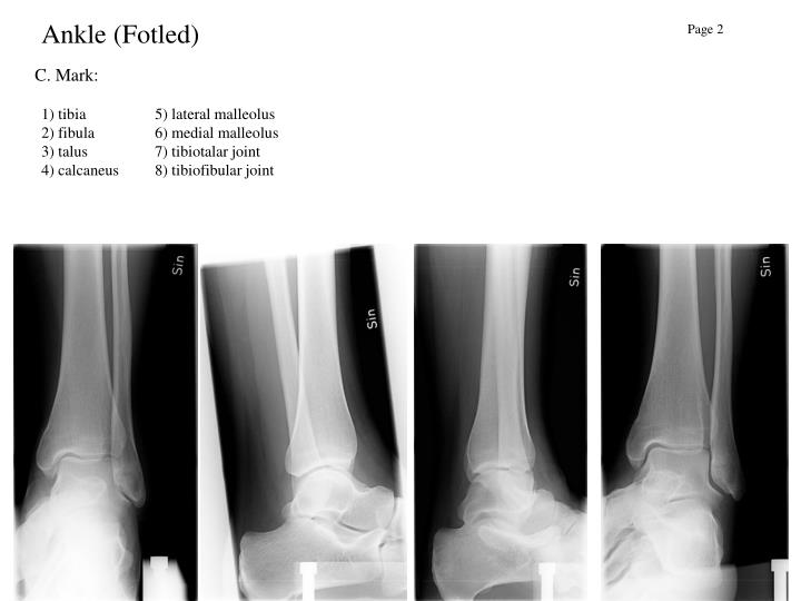 Ankle (Fotled)