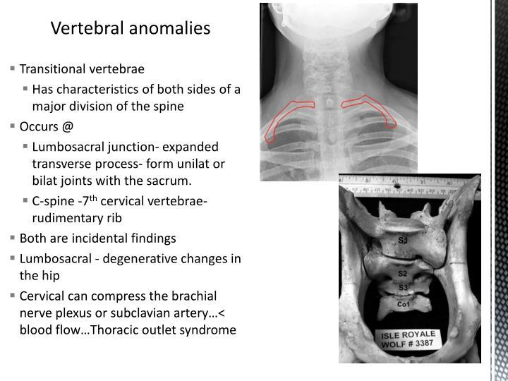 Transitional vertebrae