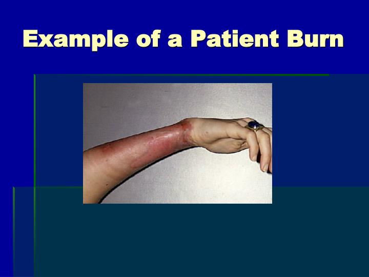 Example of a Patient Burn