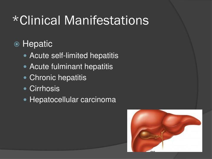 *Clinical Manifestations