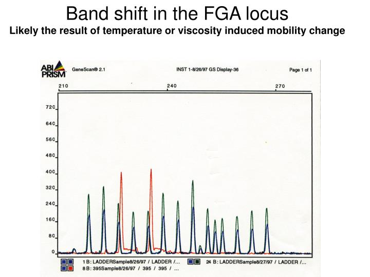 Band shift in the FGA locus