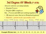 3rd degree av block 3 avb