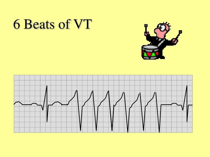 6 Beats of VT
