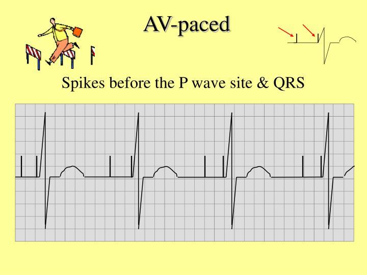AV-paced