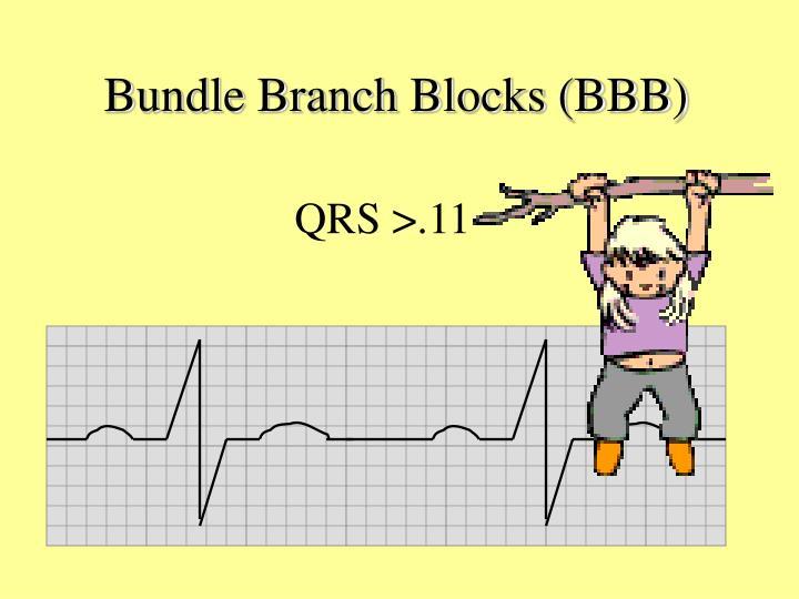 Bundle Branch Blocks (BBB)