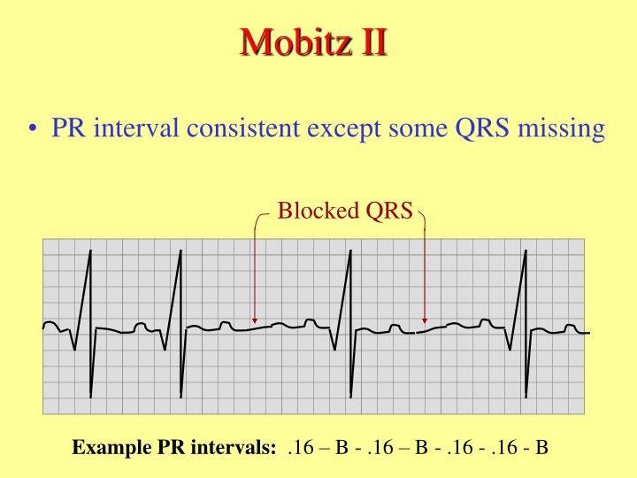Blocked QRS