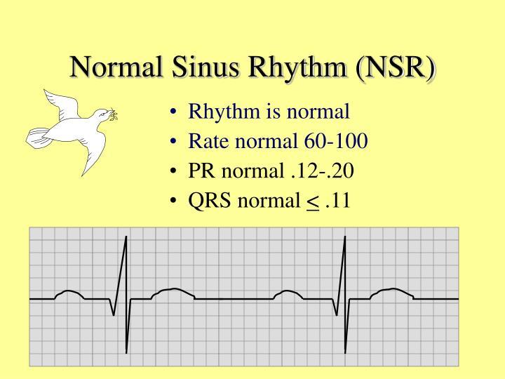 Normal Sinus Rhythm (NSR)