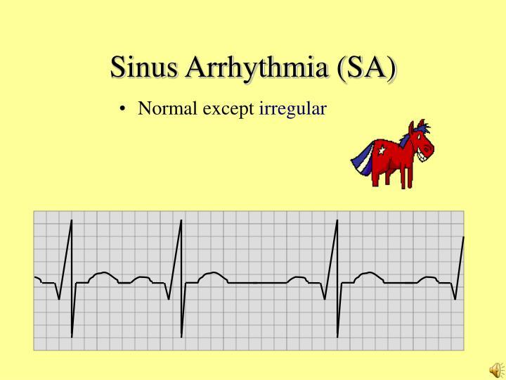 Sinus Arrhythmia (SA)