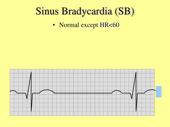 Sinus Bradycardia (SB)