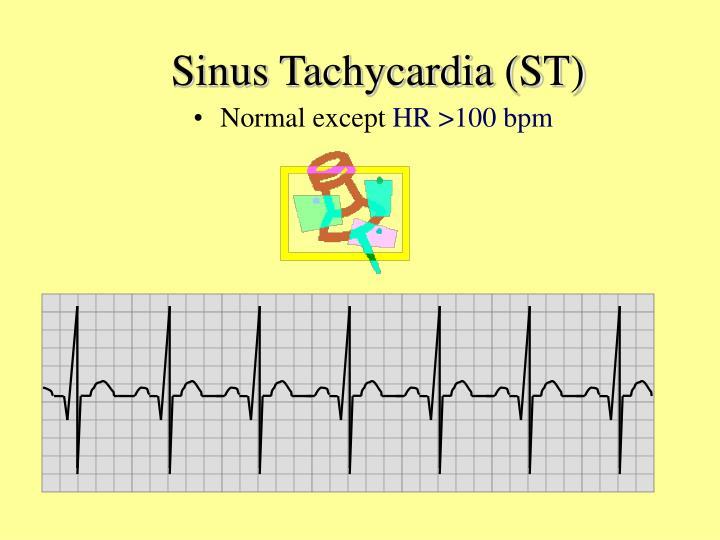 Sinus Tachycardia (ST)