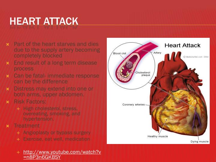 Part of the heart starves and dies due to the supply artery becoming completely blocked