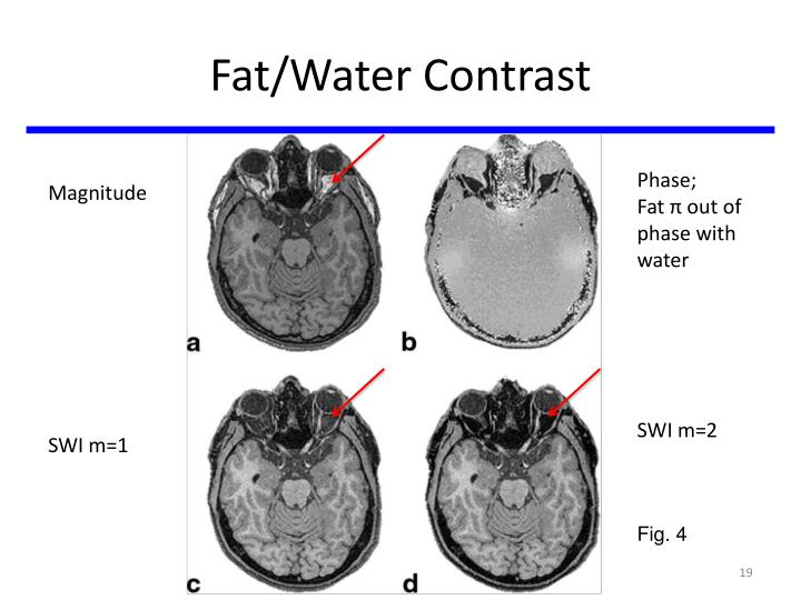 Fat/Water Contrast