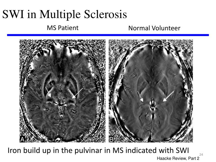 SWI in Multiple Sclerosis