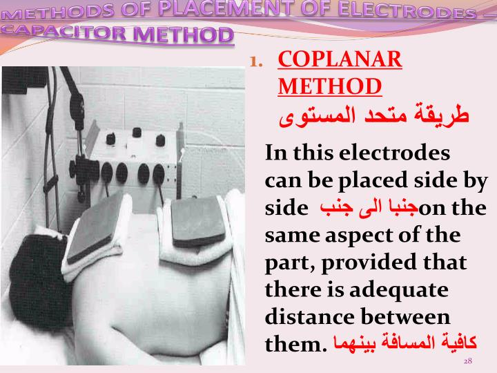 METHODS OF PLACEMENT OF ELECTRODES – CAPACITOR METHOD