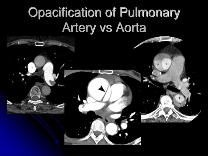 Opacification of Pulmonary Artery vs Aorta
