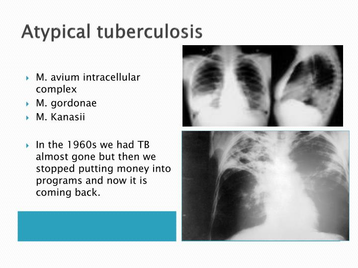 Atypical tuberculosis