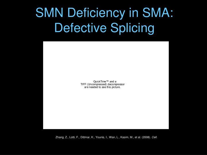 SMN Deficiency in SMA: Defective Splicing