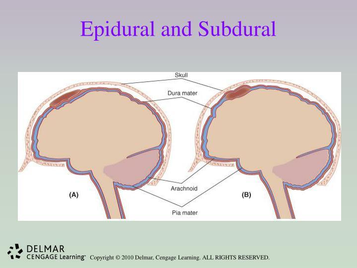 Epidural and Subdural