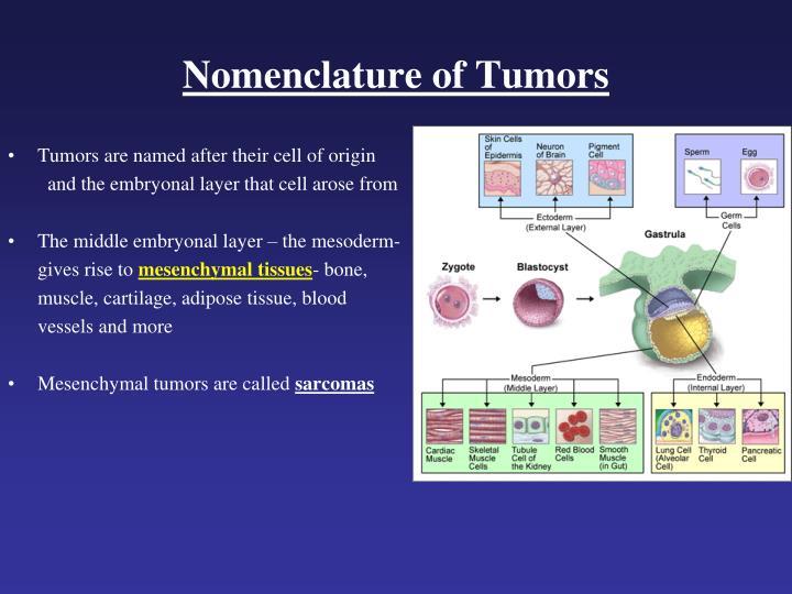 Nomenclature of Tumors