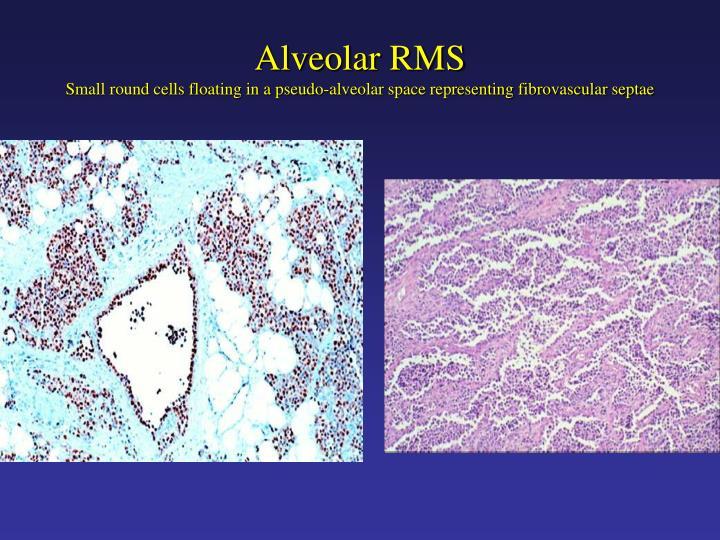 Alveolar RMS