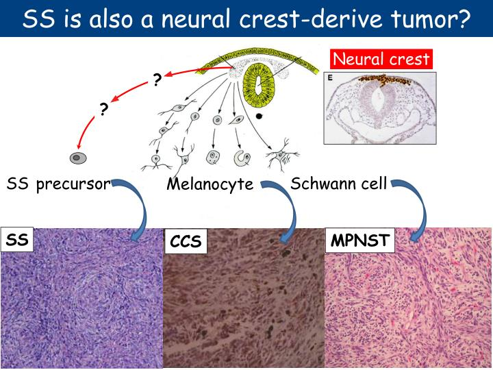 SS is also a neural crest-derive tumor?
