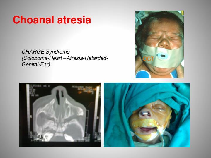 Choanal atresia