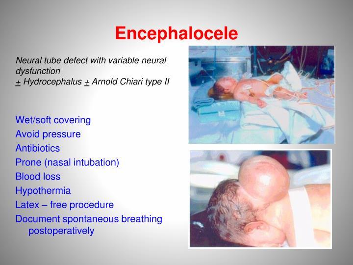 Encephalocele