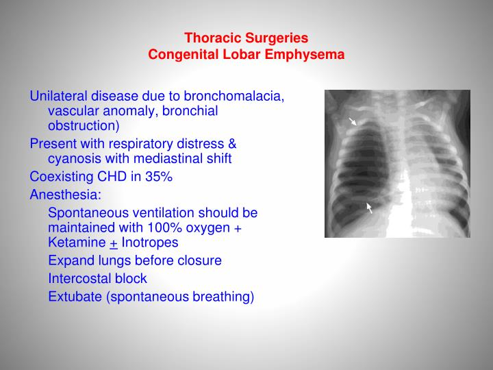 Thoracic Surgeries
