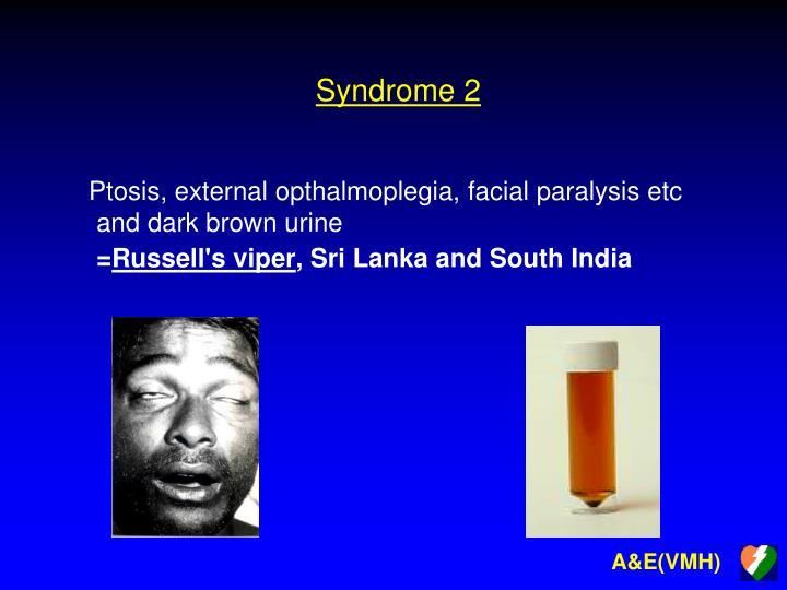 Syndrome 2