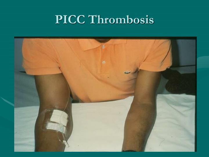 PICC Thrombosis
