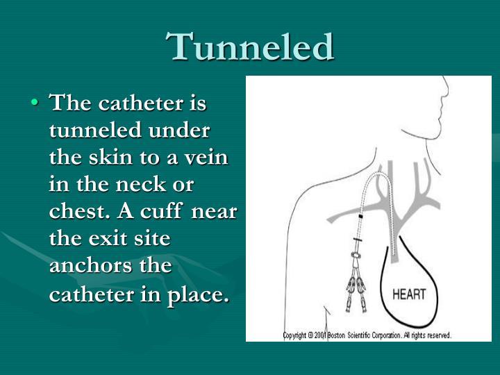 Tunneled