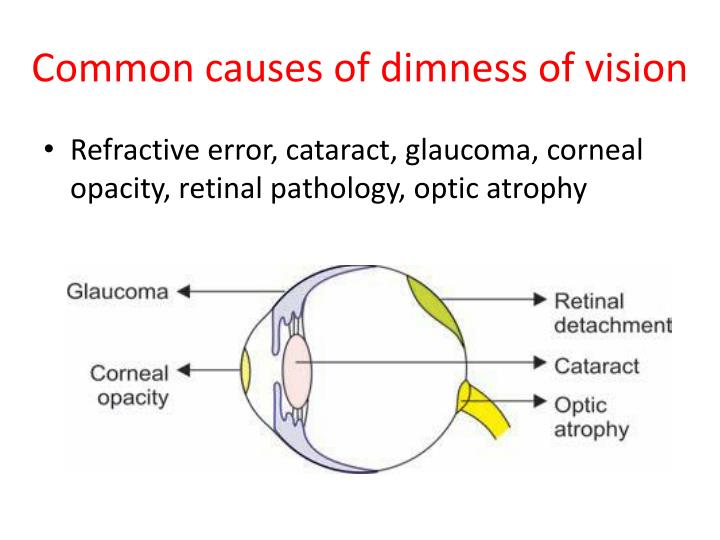 Common causes of dimness of vision