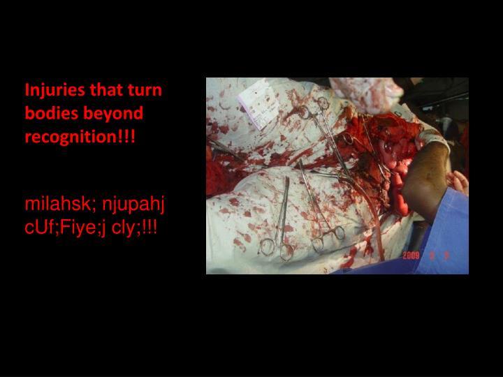 Injuries that turn bodies beyond recognition!!!
