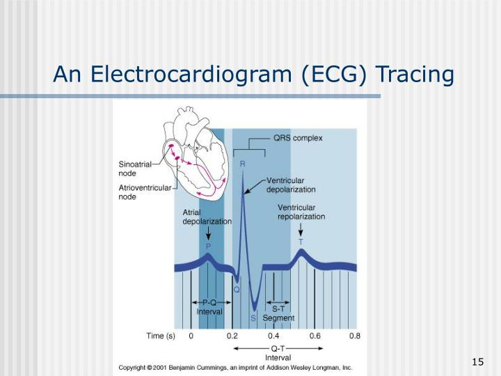An Electrocardiogram (ECG) Tracing