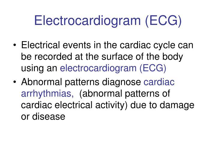 Electrocardiogram