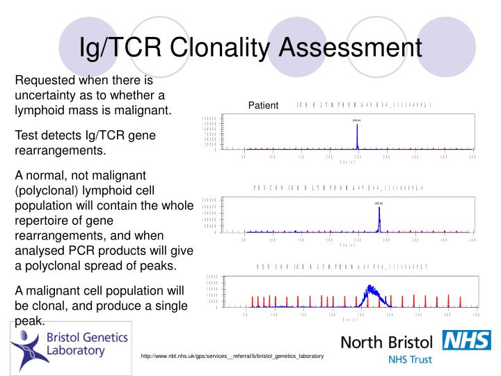 Ig/TCR Clonality Assessment