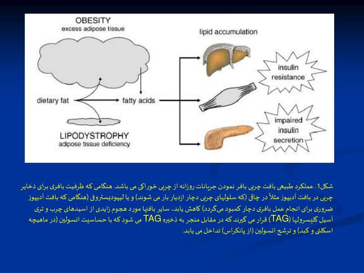 شکل1. عملکرد طبیعی بافت چربی بافر نمودن جریانات روزانه از چربی خوراکی می باشد. هنگامی که ظرفیت بافری برای ذخایر چربی در بافت آدیپوز مثلاً در چاقی (که سلولهای چربی دچار ازدیار بار می شوند) و یا لیپودیستروفی (هنگامی که بافت آدیپوز ضروری برای انجام عمل بافری دچار کمبود میگردد) کاهش یابد، سایر بافتها مورد هجوم زایدی از اسیدهای چرب و تری آسیل گلیسرولها (