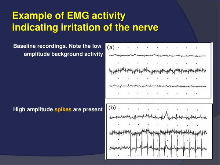 Example of EMG