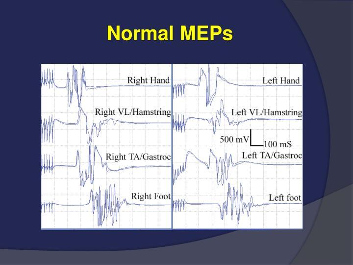 Normal MEPs