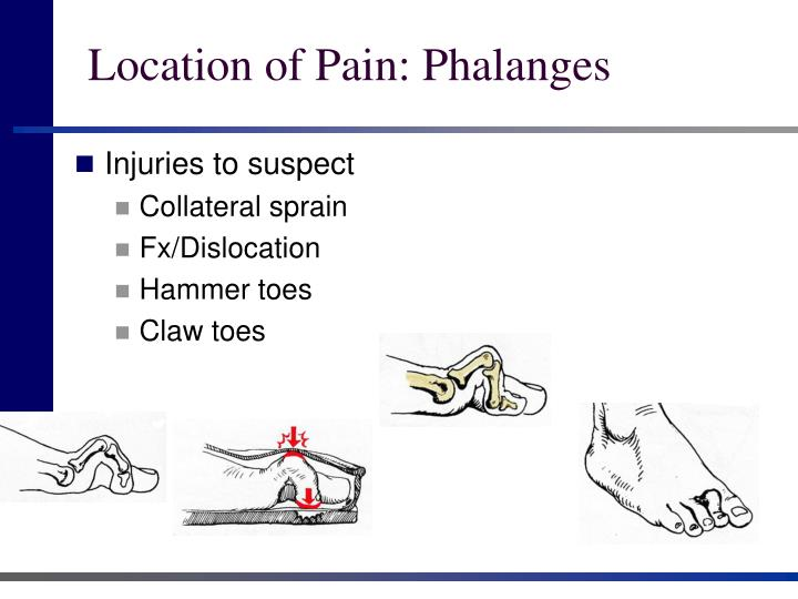 Location of pain phalanges