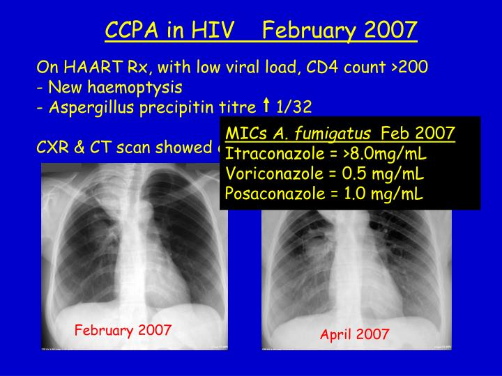 On HAART Rx, with low viral load, CD4 count >200