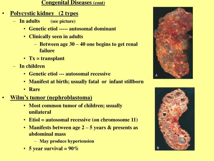 Congenital Diseases