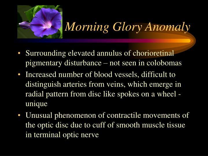 Morning Glory Anomaly