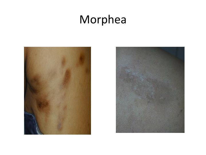 Morphea
