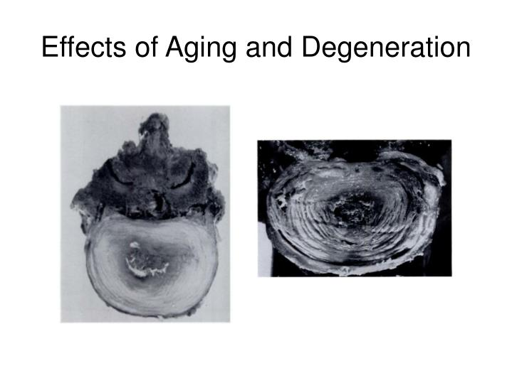 Effects of Aging and Degeneration