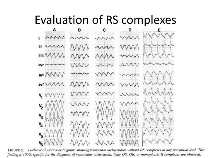 Evaluation of RS complexes